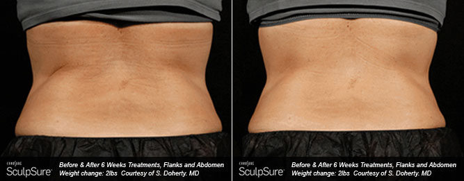 BodyContouring5
