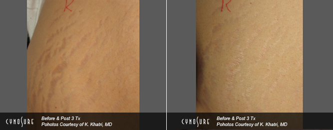 Acne Scars And Stretch Marks Treatment Toronto Clinic