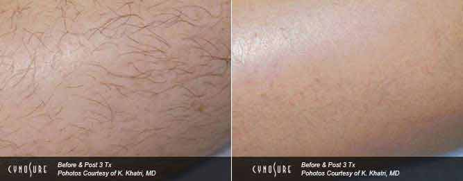 Best Laser Hair Removal - Leg, Toronto Clinic