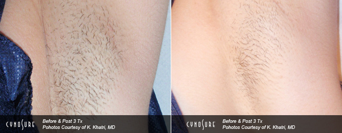 Laser Hair Removal North York Clinic - Under Arms