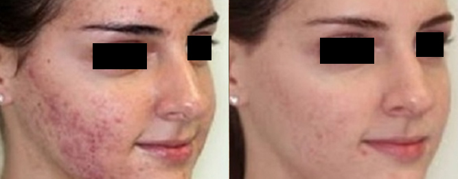 acne on face and forehead